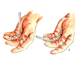 flexor_graft