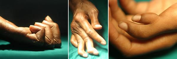 Working Hands Slide 2