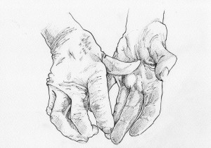 arthritic-hands-at-rest-300x210