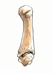 Thumb metacarpoal and trapezium
